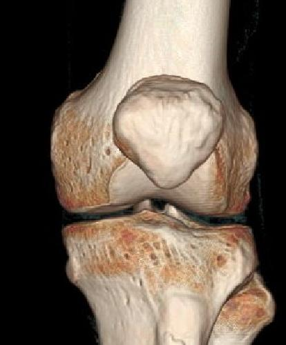 Кт коленного сустава стоимость народное средство для лечения суставов пальцев рук